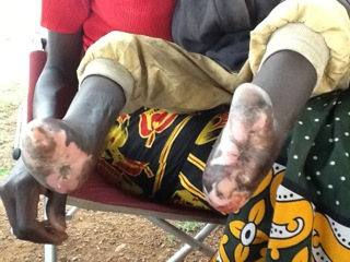 2 Fußverstümmelung bds