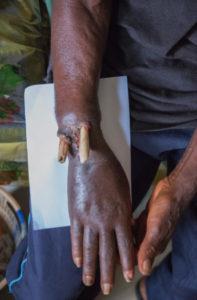 Zustand nach 2 Jahre alter Unterarmfraktur mit Durchspiessung und Infektion